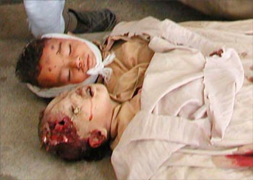Is this what it takes to wake us up to our own cruelty? Does one have to hold their own war killed baby to wake them up?