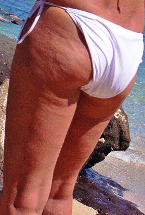 Cellulite on a woman's skin.
