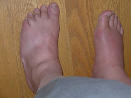 Right big toe, gout with advanced swelling. This condition is one of the most excrutiatingly painful!