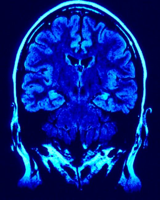 The brain is composed of many parts, each one for a different function.