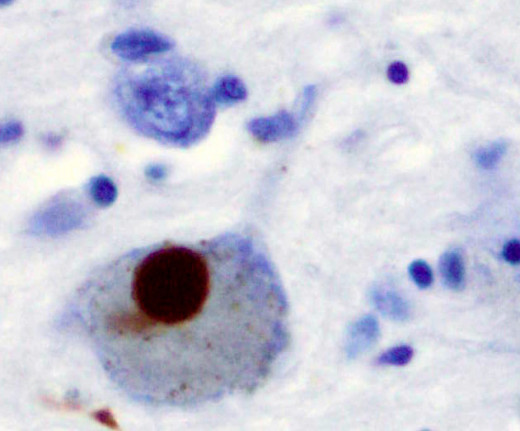 The brown stain indicates a Lewy body inside a nerve cell in a region of the brain called the Substantia nigra.