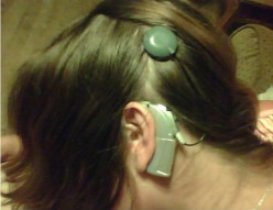 What are your general questions about cochlear implant?