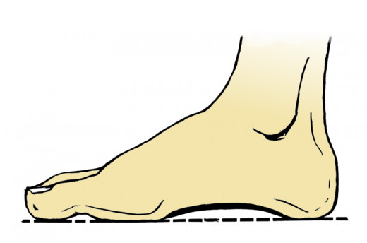 Most people have an arch shape under their foot. However it's also normal to have no arches.
