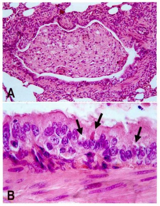 Lung lesions