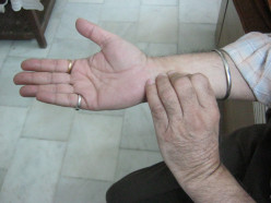 Acupressure For Migraines And Headache