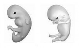 An embryo at six weeks of gestation is on the left, and a fetus at ten weeks of gestation is on the right. The baby develops quickly during the first trimester.