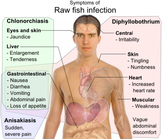 Parasite infection is rare in raw fish