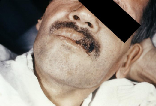 Skin lesion due to disseminated histoplasmosis