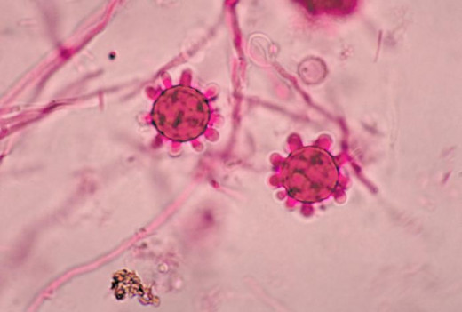 The spores of histoplasmosis - they can be inhaled into the lungs.