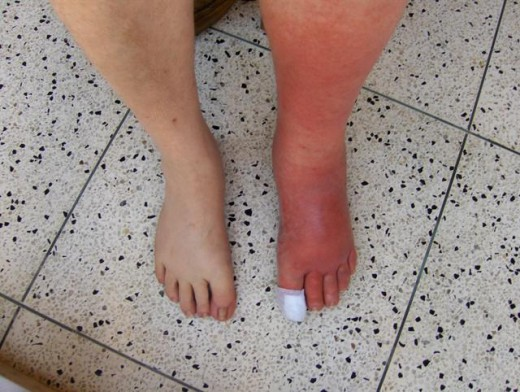 A bacterial infection called cellulitis that affects the deeper layers of the skin and tissues.