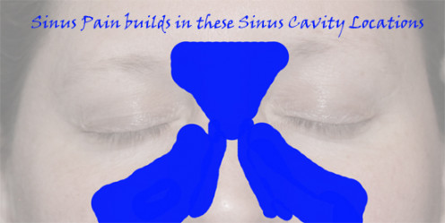 Sinus Pain and Pressure is the result of Sinus Inflammation in the Sinus Cavities shown here.