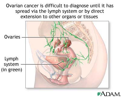 Ovarian cancer is different to diagnose until it has spread via the lympth system or by direct extension to other organs or tissues