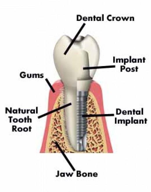 Tooth Implant after extraction