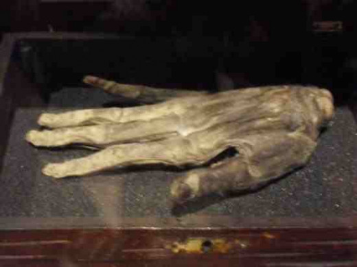 Hand of Glory Whitby Museum tripadvisor.co.uk