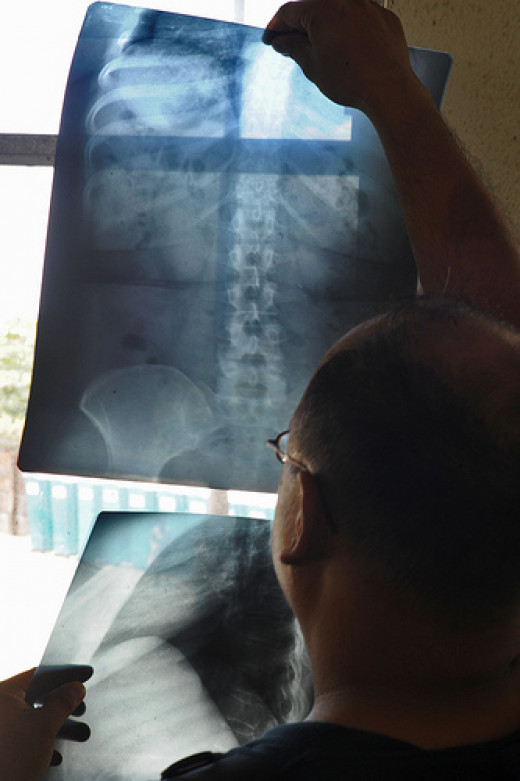 Considering Spine Surgery