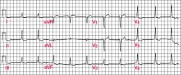 Classic WPW EKG