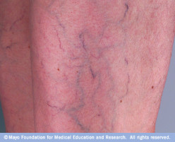 How to Treat Varicose Veins - Sclerotherapy