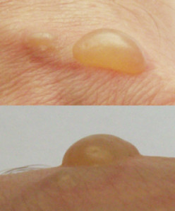 How to Treat and Heal Blisters