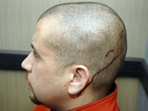 This Feb. 27, 2012 photo released by the State Attorney's Office shows George Zimmerman, the neighborhood watch volunteer who shot Trayvon Martin. The photo and reports were among evidence released by prosecutors that also includes calls to police, v