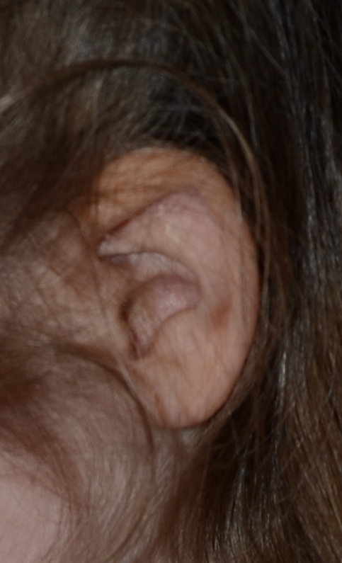 pic of ear