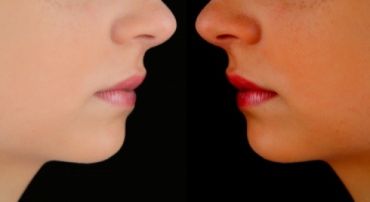 What's causing your chin acne?