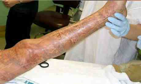 """This school girl survived a horrific envenomation recently and was unconscious and near death before her a """"miracle"""" survival...her leg was covered in stings and the agony itself must have been life-threatening credit Guardian Pictures"""