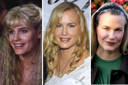 Daryl Hannah before and after plastic surgery. The first picture is from her early years as an actress.