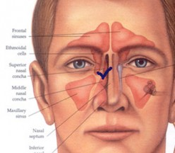 When to Visit A Specialist for your Vocal and Nasal Health Problems