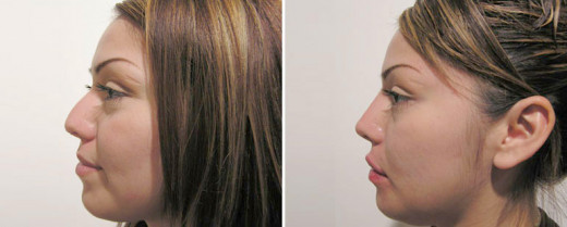 Filler creates a straighter, more balanced nose profile on candidate with droopy tip.