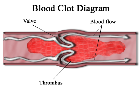 Diagram showing a blood clot almost blocking a blood vessel. In this case, some blood is still able to by-pass the clot, but eventually the clot will cut off the whole vessel.