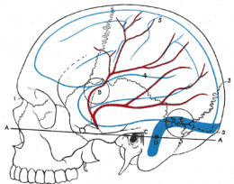 Showing some of the blood vessels in the brain that can become blocked or bleed causing a stroke.