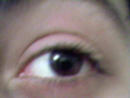 A healthy eye!
