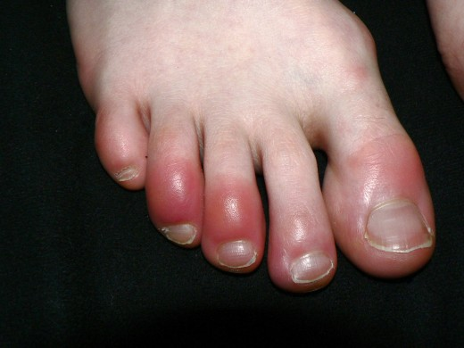 Inflammation and chilblains: unlike aspirin and ibuprofen, acetaminophen doesn't reduce inflammation