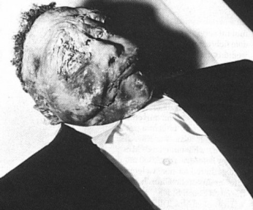Photo of the body of Emmett Till in his open casket.