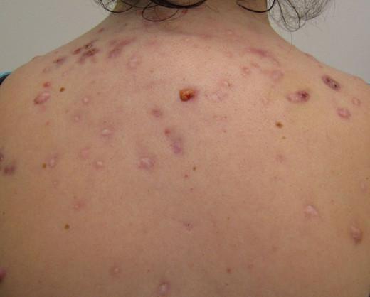 Severe back acne.