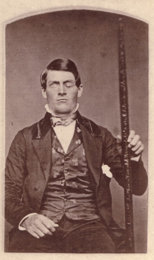 Phineas Gage with the tapping iron that pierced his frontal lobe.
