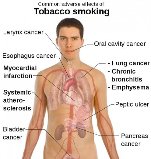 Photo Source: http://cigarettezoom.com /