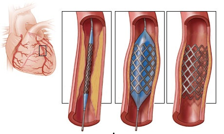 Stent placement in angioplasty