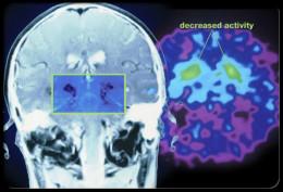 Decreased Brain Activity