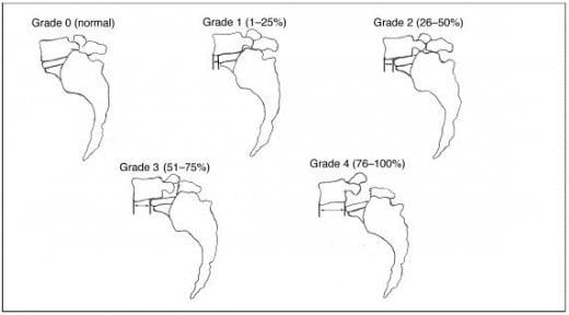 Spondylolisthesis grading 5mm