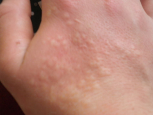 The rash caused by a nettle sting. Some people find it only mildly painful, but others can experience more severe symptoms.