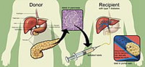 Diagram showing islet cell transplants for diabetics