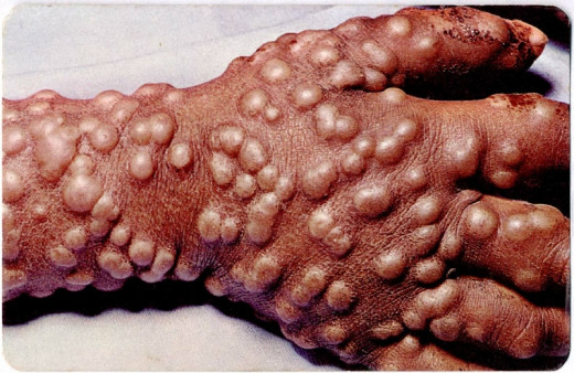 Smallpox on the hand