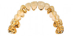 How To Sell Dental Gold