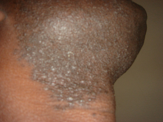 Hair loss - Wikipedia