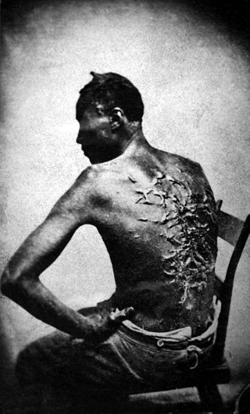 However badly they were treated when they came North, nothing could compare with the brutality and cruelty slaves had suffered at the hands of their owners. This former slave was photographed after he escaped to the North.