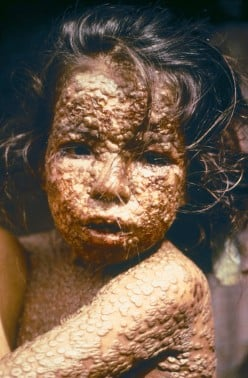 Immunization History - Smallpox, Edward Jenner and Mary Montagu
