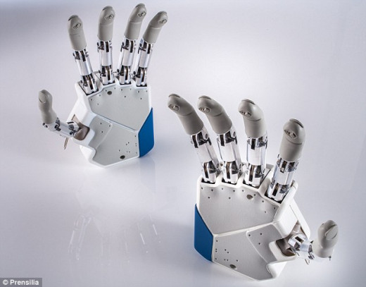 The bionic hand can be controlled via nerve impulses, and at the same time can receive sensory input to the brain