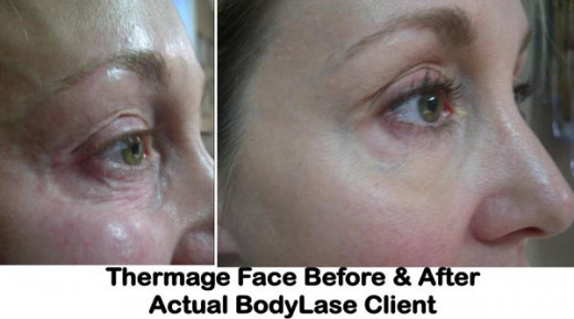 Thermage Face Treatment Before and After