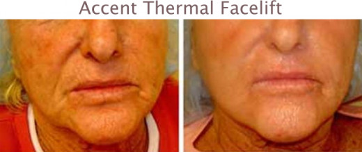 Thermal Face Lift Before and After